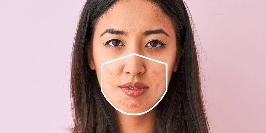 جای ماسک بر روی صورت