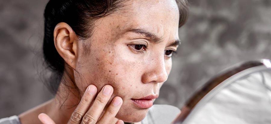 تأثیرات آفتاب سوختگی بر روی پوست